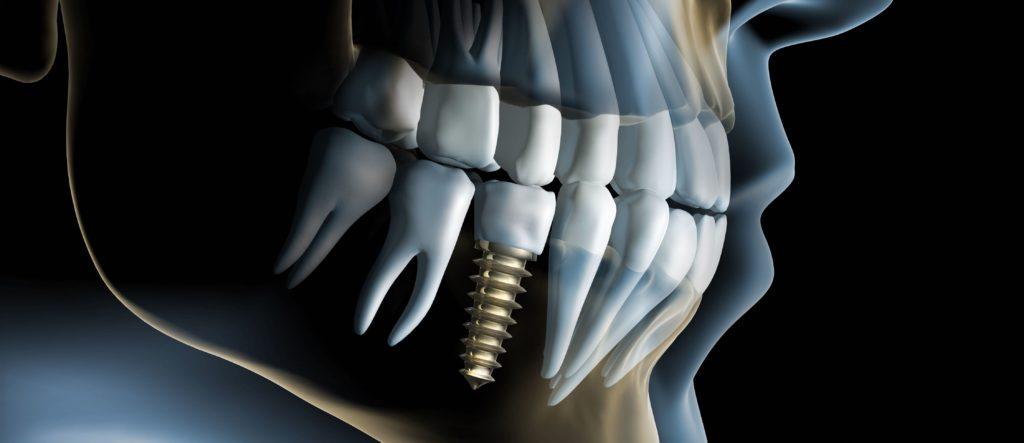 Одноэтапная (одномоментная) имплантация зубов в Омске.